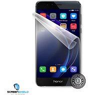 ScreenShield für Honor 8 für gesamte Vorderseite des Telefons - Schutzfolie
